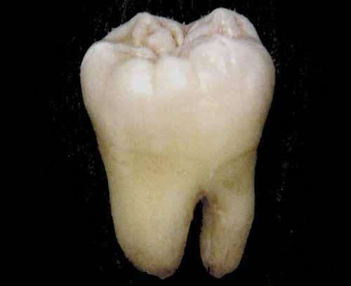 Des chercheurs japonais créent des cellules souches avec une dent arrachée